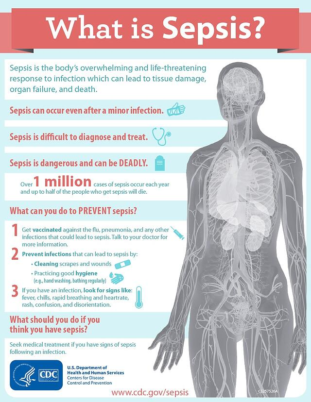 CDC sepsis infographic   patient safety
